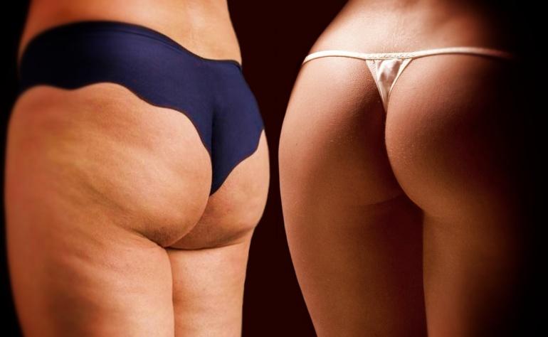 Cellulit – jak się go pozbyć naturalnymi metodami?